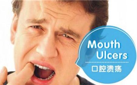 口腔溃疡为何总是发生?3种营养素可以解决问题,缺一不可-今日新鲜事