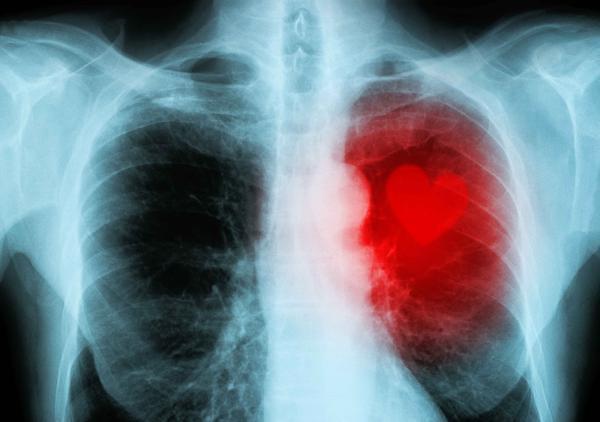 肺癌早期,身体会出现3个比较明显的症状反应,发现后趁早就医-今日新鲜事
