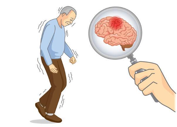 冬季脑出血易高发!要想预防它,很简单,做好这5点远离脑出血-今日新鲜事