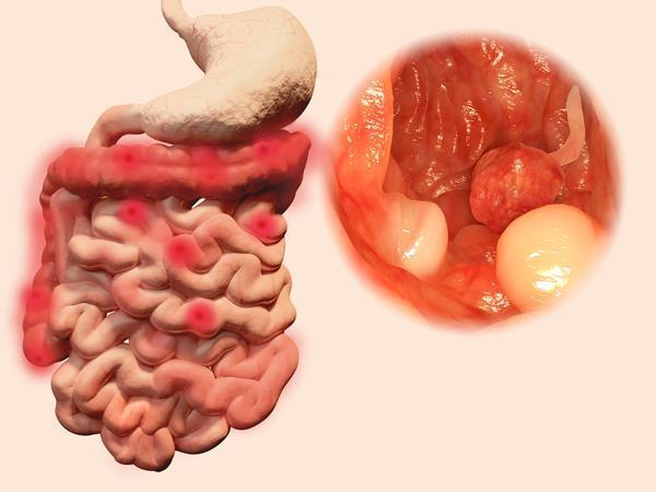 """患有肠息肉不能拖,大便有这4种""""异常"""",当心息肉已发生病变-今日新鲜事"""