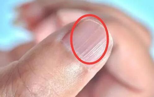指甲出现竖纹是身体不好的表现么?-今日新鲜事