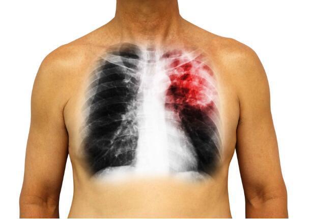 患有肺癌后,身体会出现这4个症状表现,发现后,赶紧检查-今日新鲜事