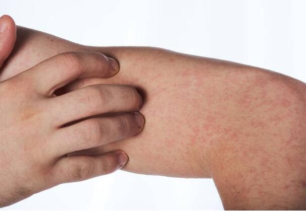 湿疹反复发作,要如何改善?医生:做好这4点可预防