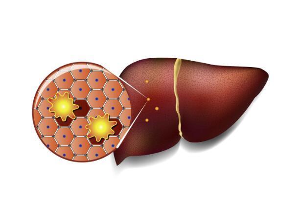 肝脏脂肪超标,要做好这6件事,脂肪肝或可逆转,肝脏会感激你-今日新鲜事